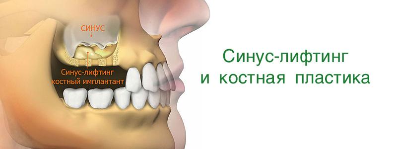 Операция по удалению зуба из гайморовой пазухи